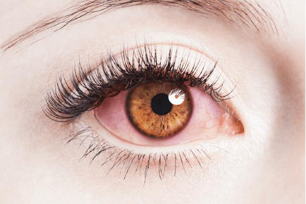 Ojos rojos de una persona debido al escozor